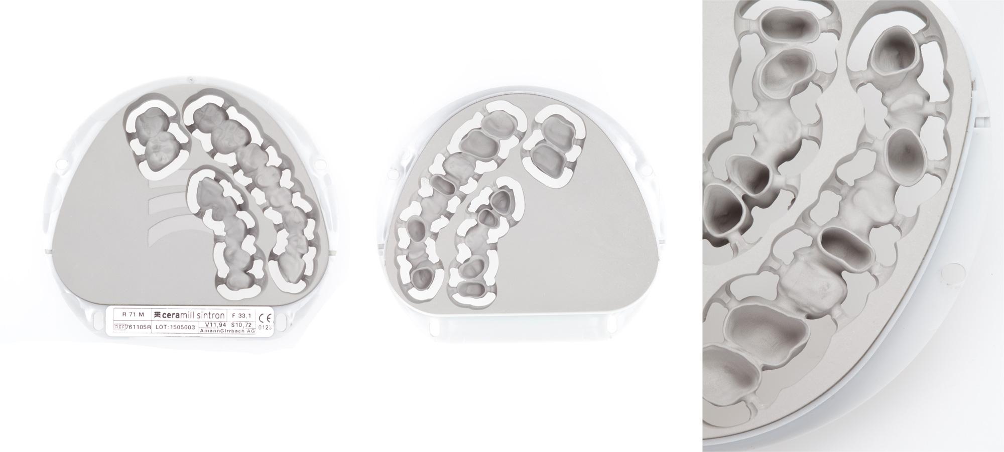 CAD CAM - absolut spannungsfrei und homogen - Klassische Metallkeramik
