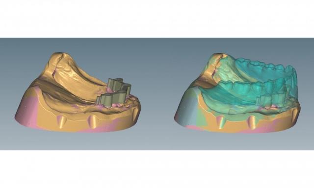Uk CAD Konstruktion - Zirkonstege/Peek Friktionselemente
