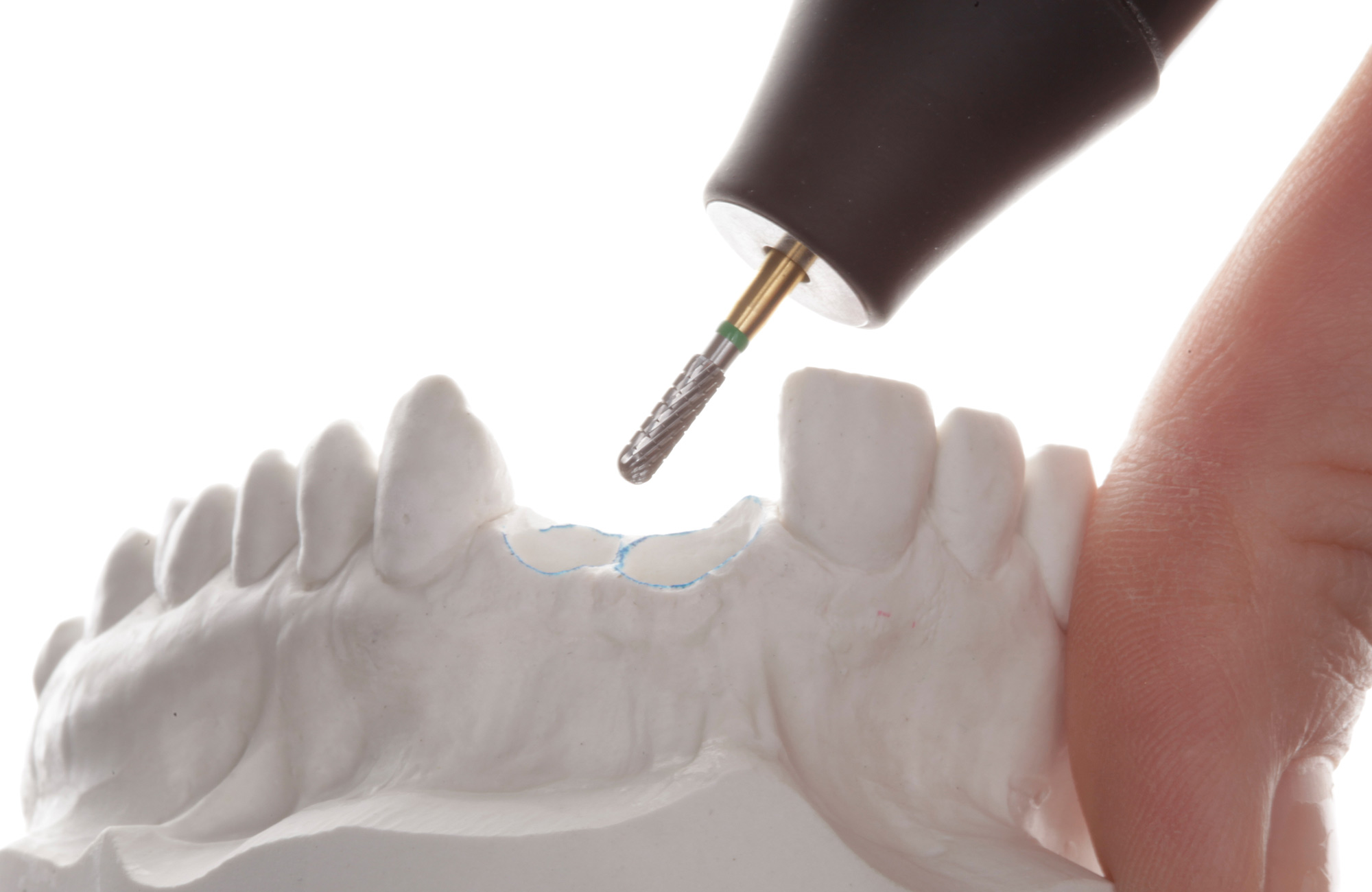 Gingiva Konditionierung - Individuelle Abutments